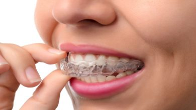 Photo of Invisalign: The Best Alternative to Braces For Overbite in 2021