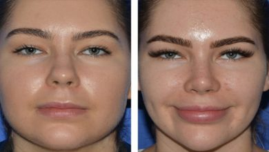 Photo of Non-Surgical Procedure For Your Face: Buccal Fat Removal