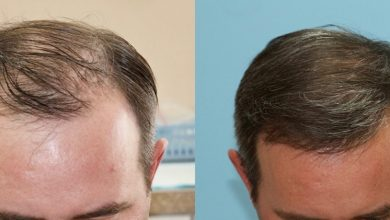 Photo of PLAN YOUR HAIR TRANSPLANT PROCEDURE WITH EASE