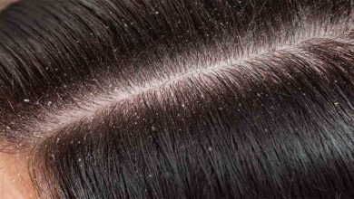 Photo of Can Dandruff Lead to Increased Hair Fall?
