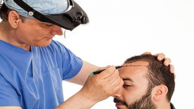 Photo of Hair Transplant Cost Per Graft in Pune