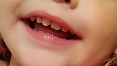 Photo of My Children Chipped a Tooth. What should I do?