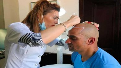 Photo of 10 Things You Need to Know About Scalp Micropigmentation