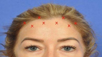 Photo of Botox Brow Lift Gone Wrong