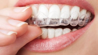 Photo of Is Invisalign really worth the cost?