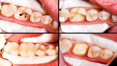 Photo of Cost of a Root Canal: Pain, Symptoms & Complications