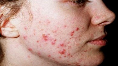 Photo of Acne Vulgaris: Diagnosis & Treatment